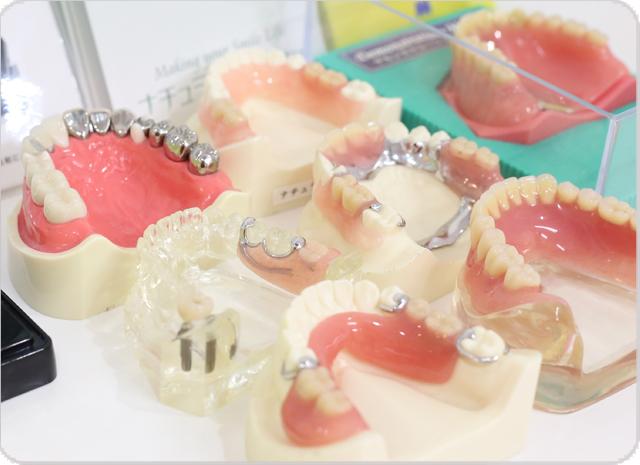 しらゆり歯科医院の部分入れ歯作製