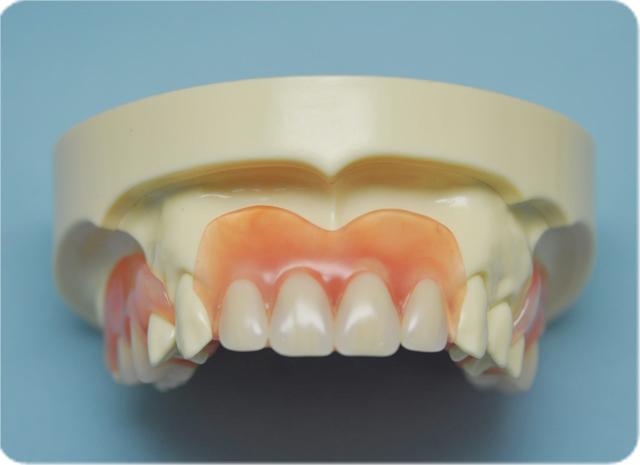 しらゆり歯科医院の入れ歯作製