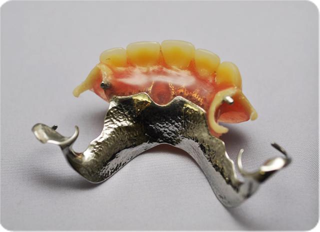 しらゆり歯科医院の金属床の入れ歯