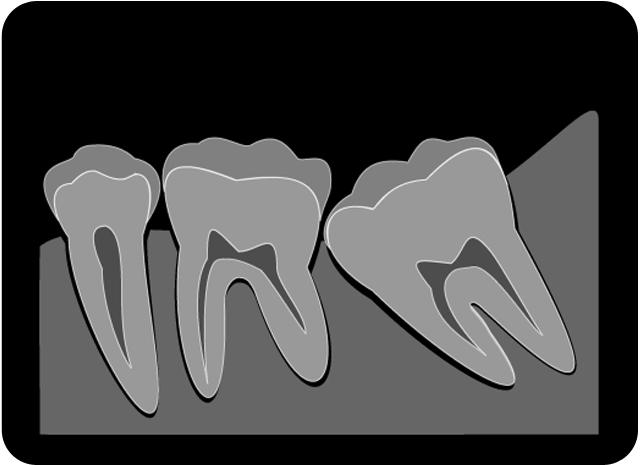 しらゆり歯科医院の歯科口腔外科・親知らずの抜歯