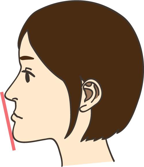 しらゆり歯科 反対咬合の治療