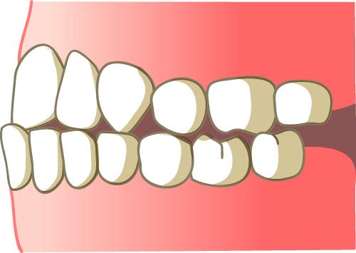 しらゆり歯科 反対咬合になる原因