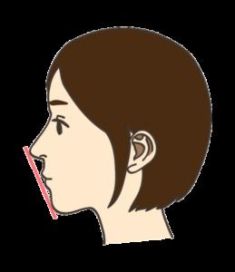 しらゆり歯科の歯列矯正